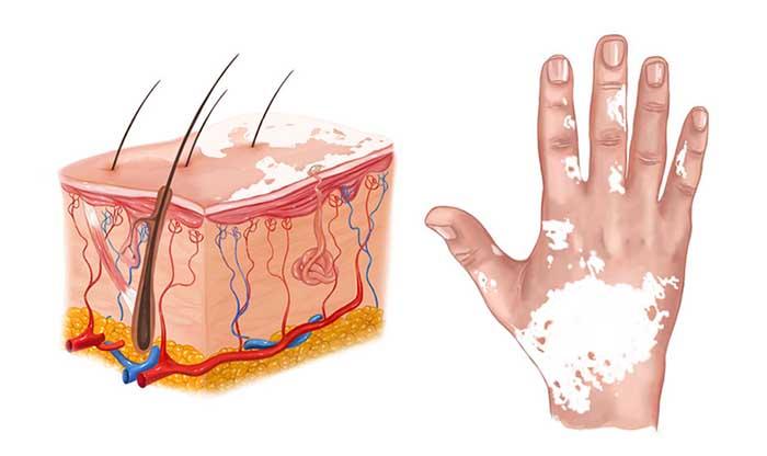 Vitiligo Types Causes Symptoms And Treatment Agogo