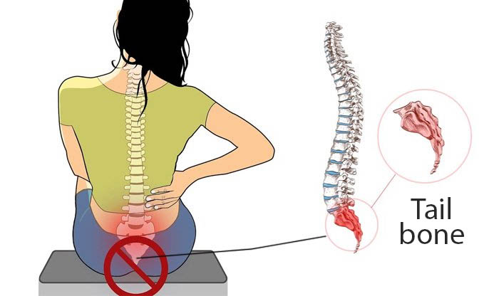 Coccydynia Tailbone Pain Causes Diagnosis Pain Relief And Prevention Agogo